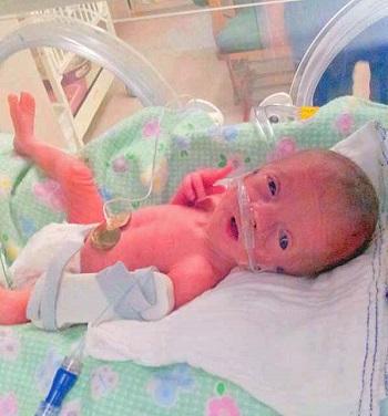 Little-Princess-in-incubator