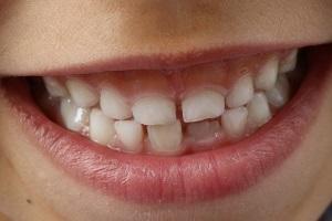 teeth-1743981