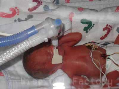 immediately-after-birth-oxygen-deprived-red-color